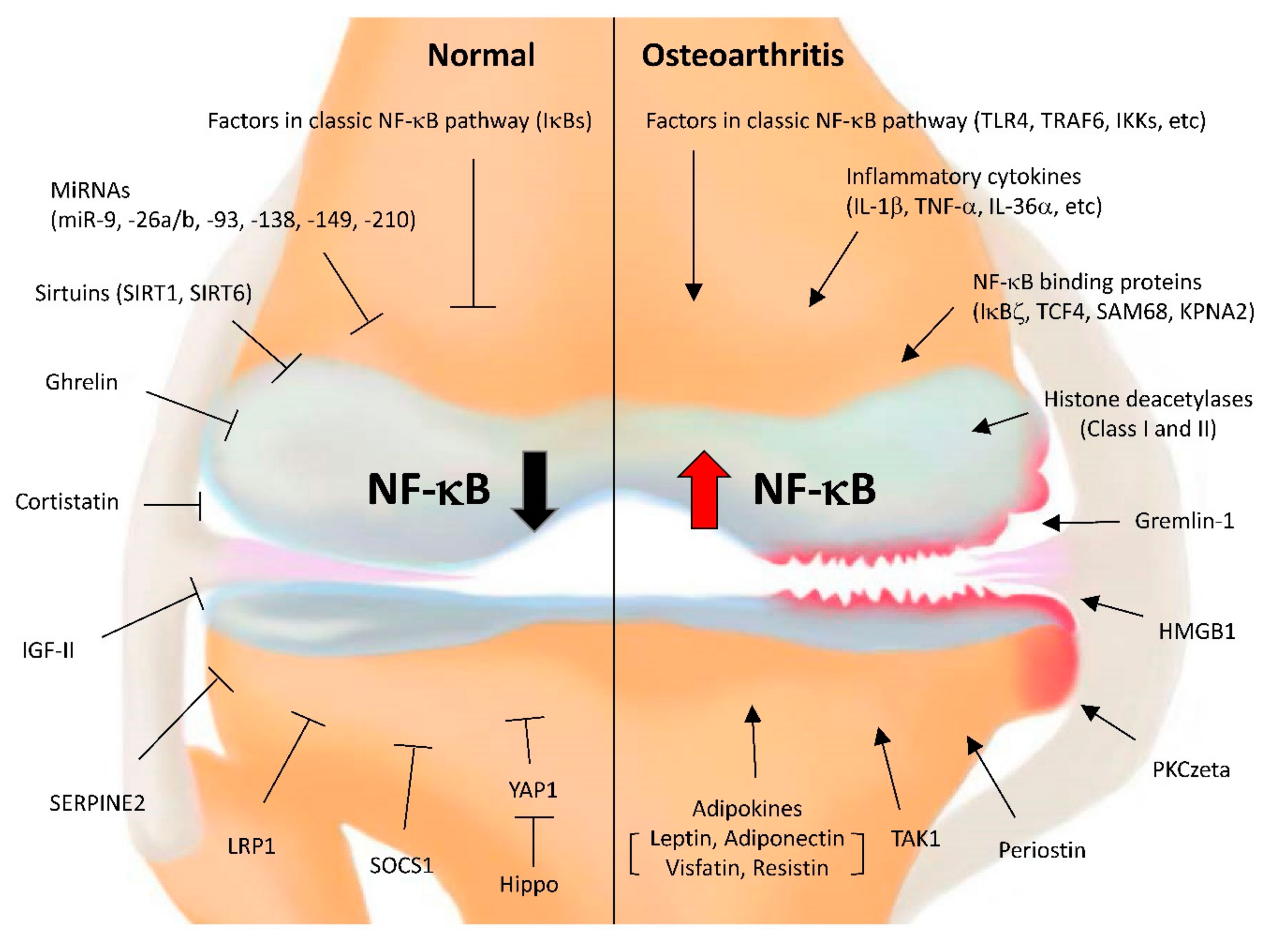 Cells | Free Full-Text | NF-κB Signaling Pathways in Osteoarthritic  Cartilage Destruction | HTML