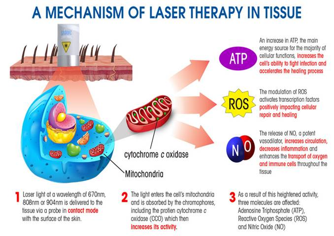 laser how it works | Respond Systems