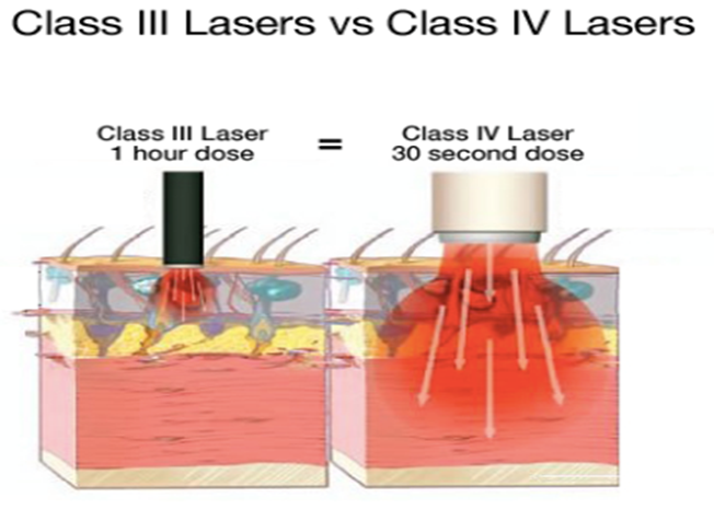 Class 4 Laser | Dr. Aaron Case - Active Release & Shockwave Therapy